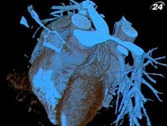 Катетеризація серця - один з новітніх методів діагностики серця