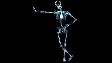 Идея рентген-аппарата принадлежит украинскому физику