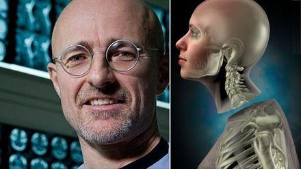 Унікальна операція: у Китаї вперше у світі провели успішну пересадку голови на трупі