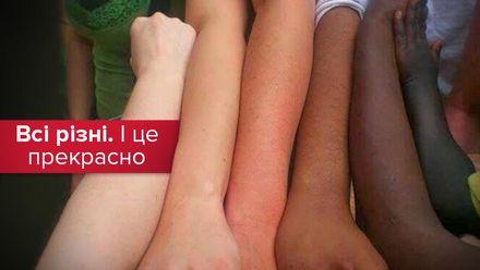 Історія расової дискримінації: чому не можна допусти повернення расизму