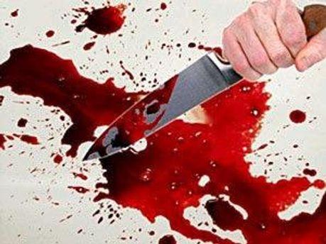 Ножем поранили охоронця Посольства США
