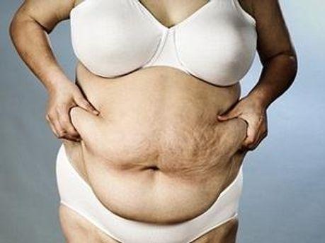 Багато людей у США страждають на ожиріння