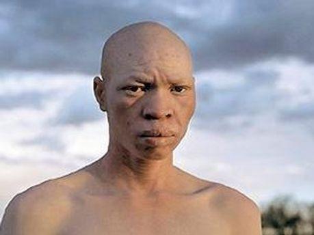 У Танзанії вірять, що органи людини-альбіноса приносять гроші і удачу