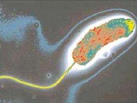 Вібріони холери виявили на Запоріжжі
