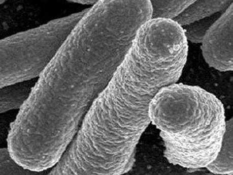 Інфекцію провокує раніше невідомий вид бактерій