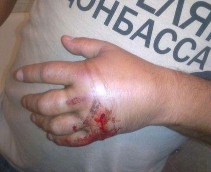 Хлопцеві прострілили долоню через футболку