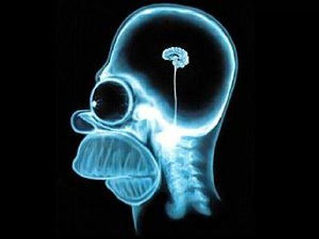 Ученые посчитали расходы от болезней мозга
