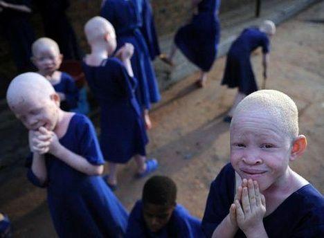 В Танзании альбиносов считают проклятыми