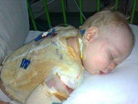 У немовляти виявили синдром ошпареної шкіри