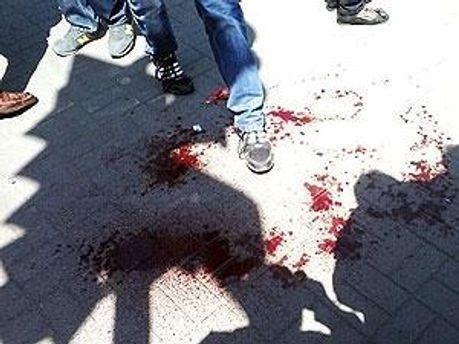 Итог дня: 29 человек пострадали в результате терактов в Днепропетровске
