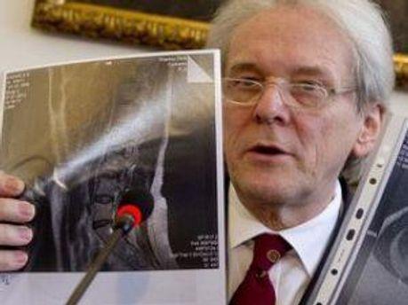 Немецкий врач со снимками спины Тимошенко