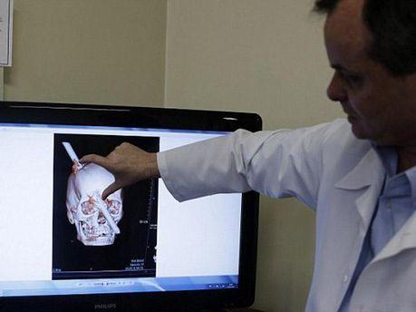 Врач показывает рентген Лейте