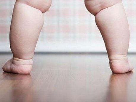 Ожиріння у ранньому віці