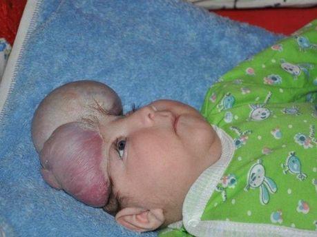 Мальчик без черепа