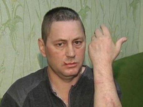 Інвалід, який заявив про побиття міліціонерами