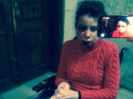 Журналістку Тетяну Чорновол побили