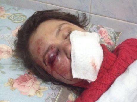 Татьяна Черновол после нападения
