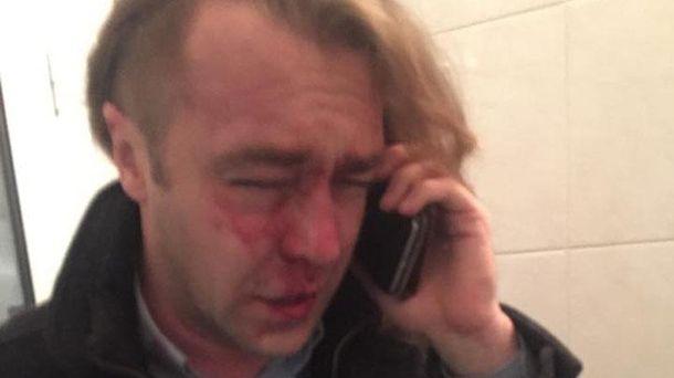 Ігор Мірошниченко після побиття