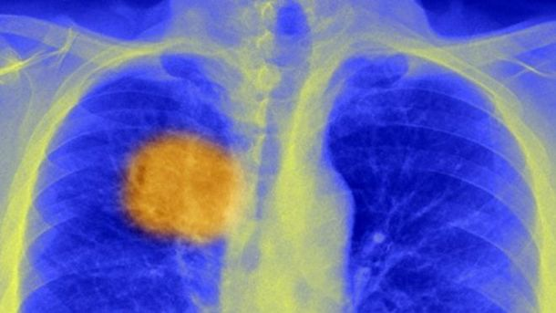 Ракова пухлина