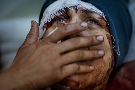Постраждала у Сирії