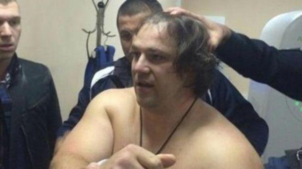 В поліції кажуть, що Пугачов був в машині сам