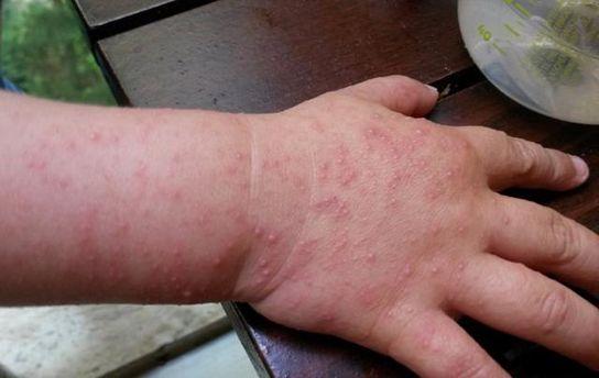 Ураження вірусом Коксакі