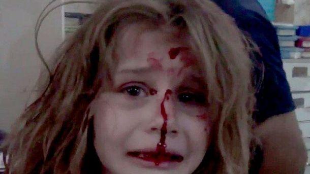 Раненая девочка в Сирии
