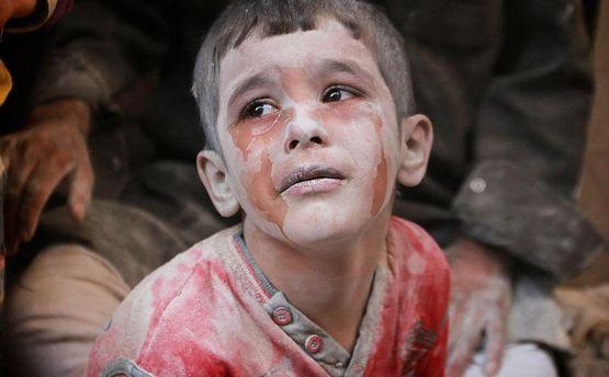Из-за войны страдают дети