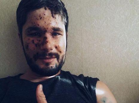 Раненый в Авдеевке журналист Кристофер Нанн рассказал об обстреле