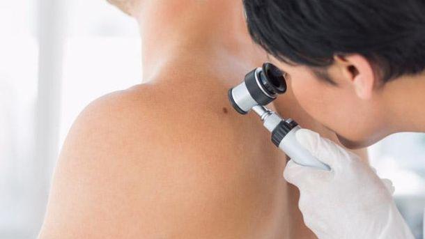 Діагностика меланоми
