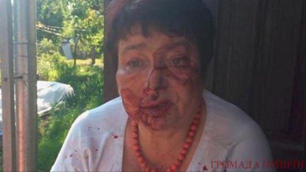 В Коцюбинском избили Людмилу Тимченко