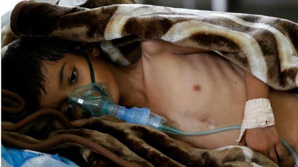 Спалах холери в Ємені