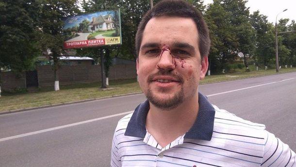 Бойца АТО жестоко избили в Луцке
