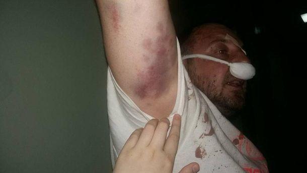 Добровольца АТО жестоко избили в Киеве