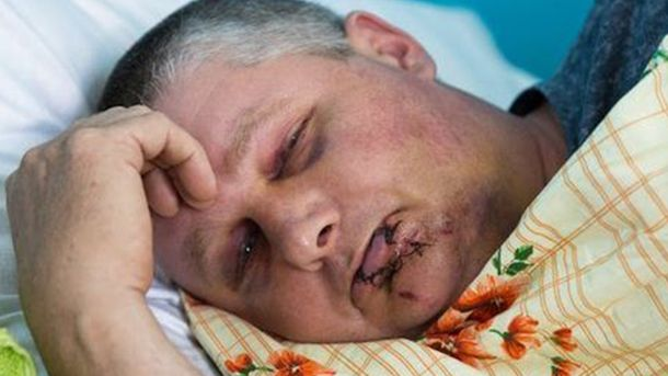 НаДонбассе строго избили юного человека иветерана АТО запроукраинские девизы