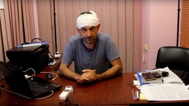 ВОдесской области железными битами избили главреда газеты «ПравдаНД»