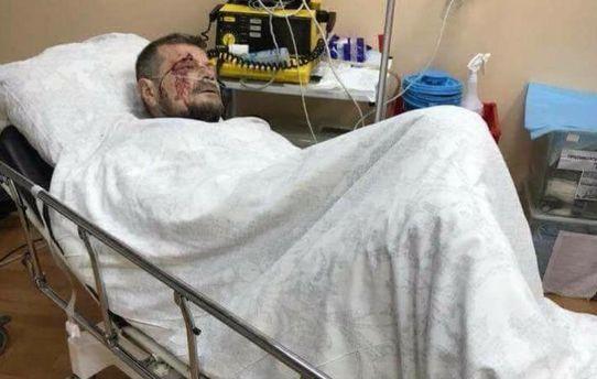 Вибух уКиєві: загинула одна людина, щетроє осіб поранено