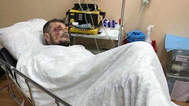 Взрыв в Киеве: на нардепа Мосийчука покушались