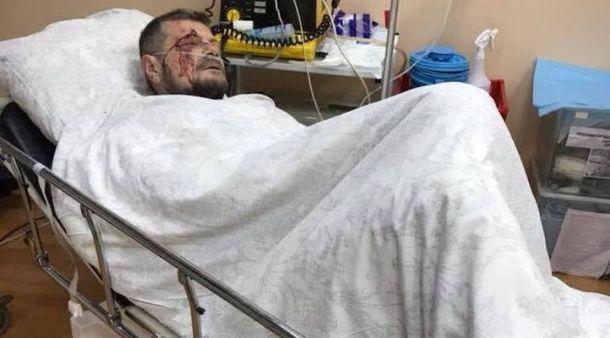 Вweb-сети появились фото раненого Мосийчука. Погибшим оказался его охранник