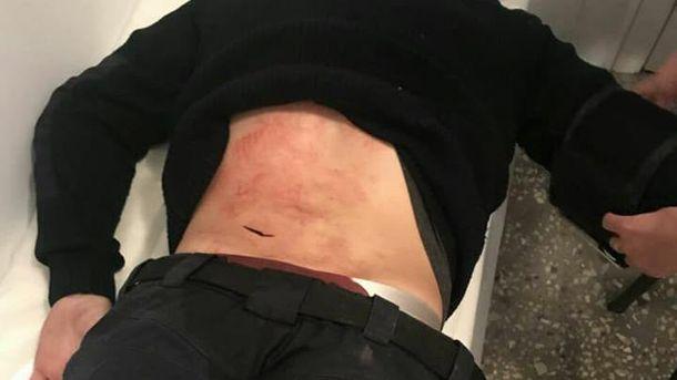 Поранення поліцейського ножем у спину