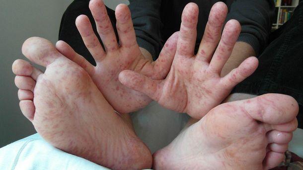 ВЗапорожской области учительница заразила детей корью,