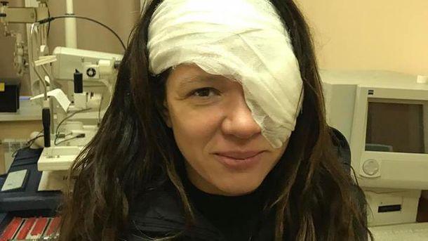 Руслана показала последствия операции налице