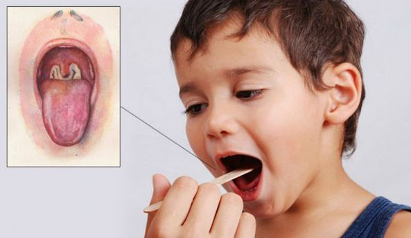 Украине угрожает эпидемия дифтерии: Минздрав призывает вакцинироваться