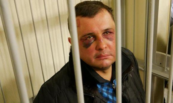 Матіос розповів про травми екс-нардепа Шепелева