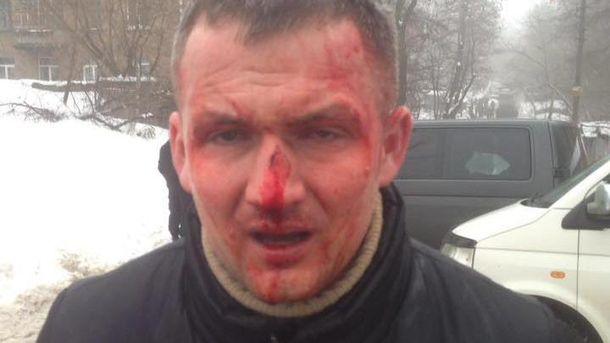 Генпрокуратура столицы Украины расследует насилие вотношении государственного деятеля— Избиение народного депутата Левченко
