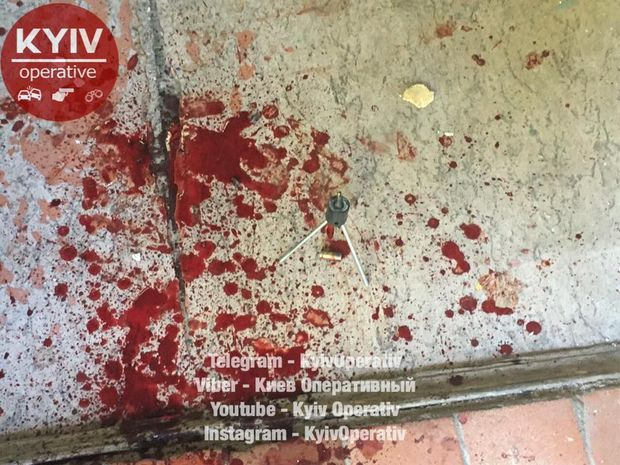 Невідомі вистрілили вчоловіка встоличному ЖЕКу