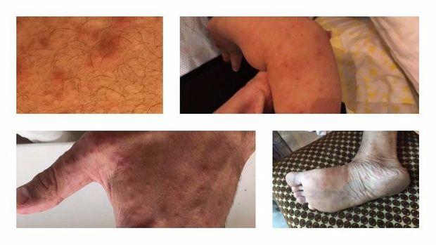 Симптоми вірусу Коксакі