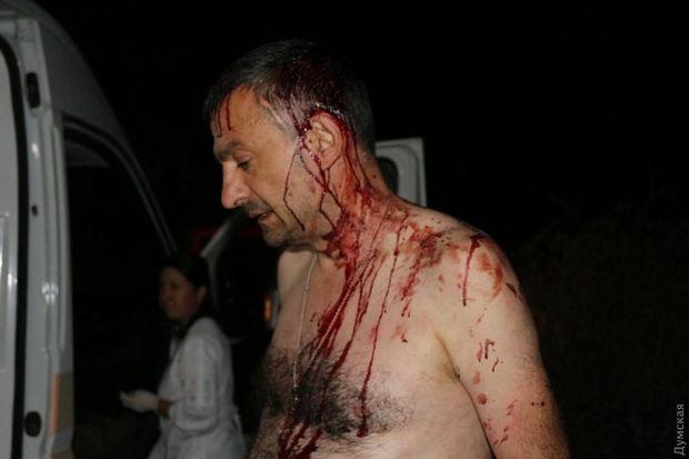 Редактора газеты под Одессой безжалостно избили битами