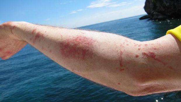 Чи небезпечний опік від жала медузи