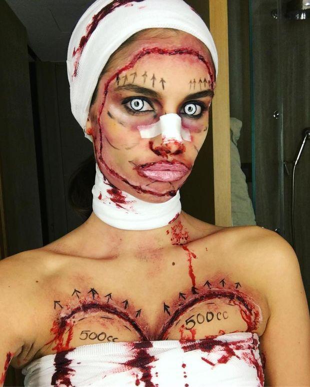 Сара Сампайо (жертва пластичного хірурга)